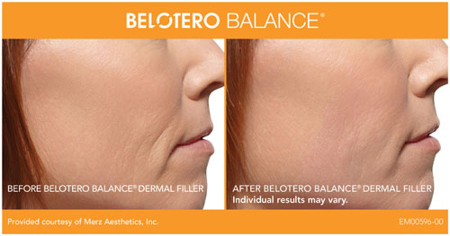 Belotero Eye Hollow Correction