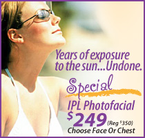 IPL Photofacial Special Discount