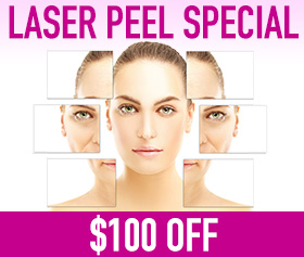 Laser Peel Skin Resurfacing Special Offer Fairfax, VA  Promo