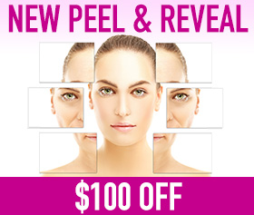 Radiance Peel & Reveal