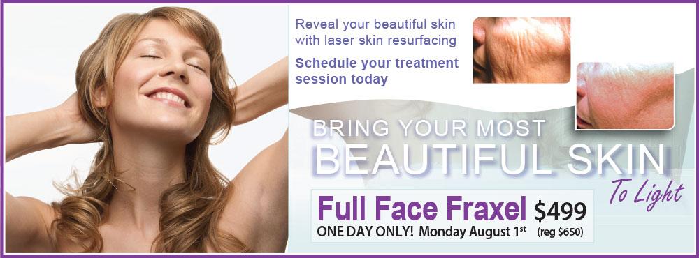 Full Face Fraxel Event Fairfax, VA