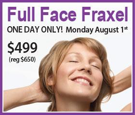 Full Face Fraxel Event