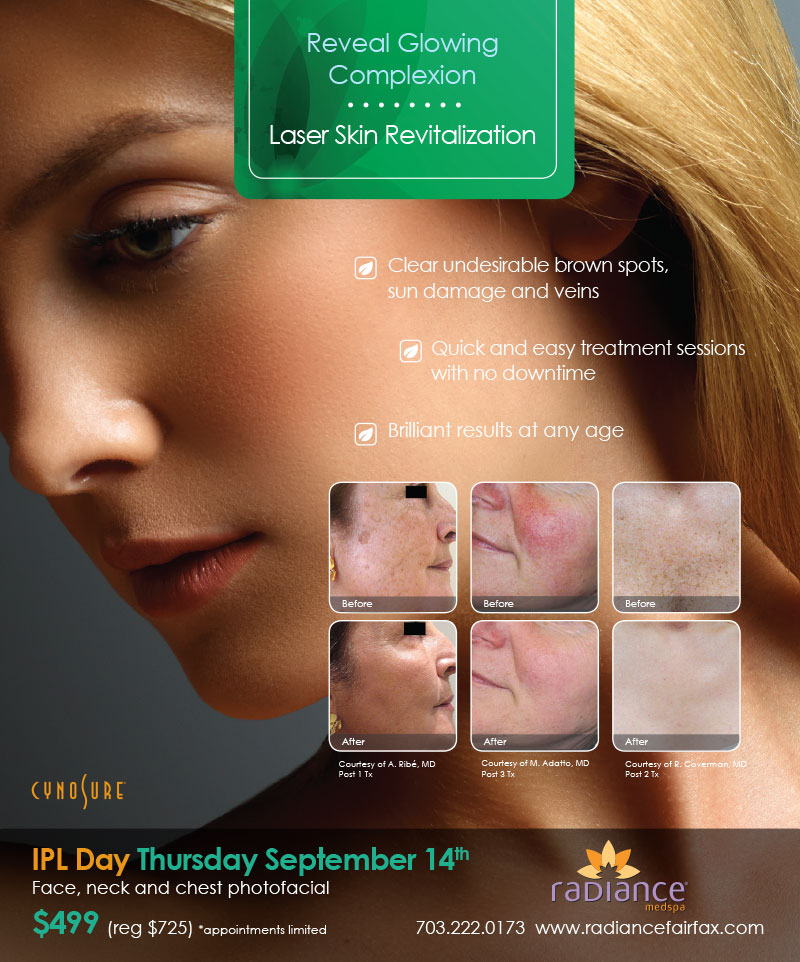 Radiance Sculpsure Special Event-August
