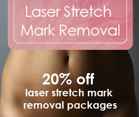 Radiance Laser Stretch Mark Removal