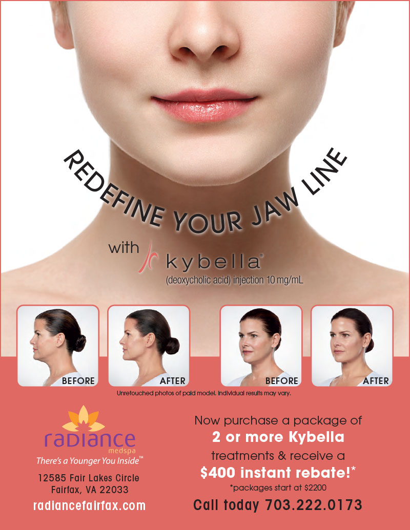 Redefine You Jaw Line with Kybella Rebate