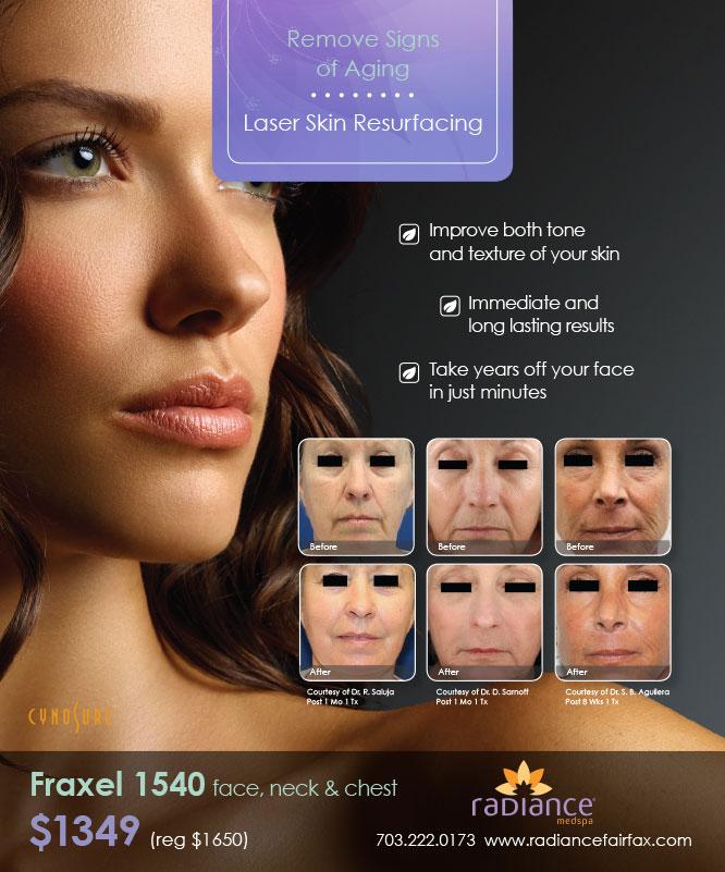 Save on Fraxel 1540 laser skin resurfacing