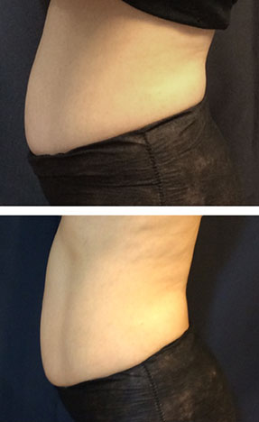 SculpSure laser fat removal at Radiance Fairfax before & after