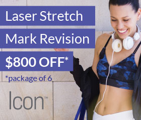 Laser Stretch Mark Revision Special
