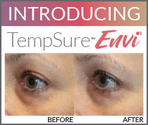 Introducing TempSure Skin Tightening