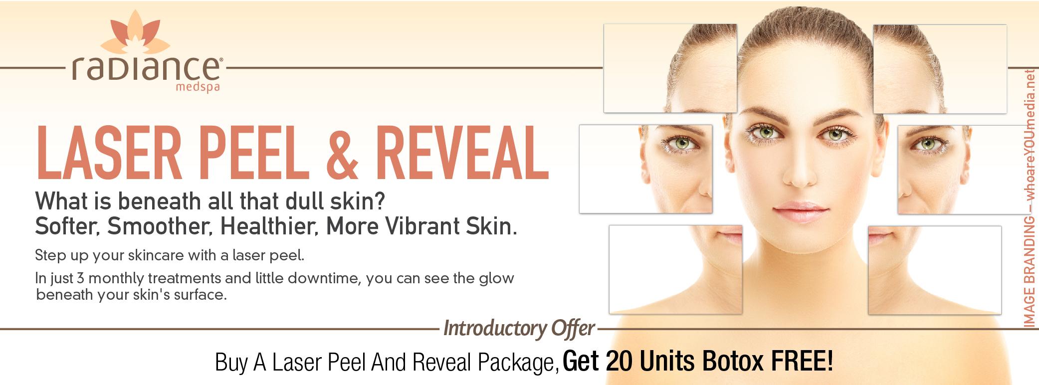 Reveal Peel Promo
