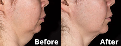 SculpSure Chin treatment before & after