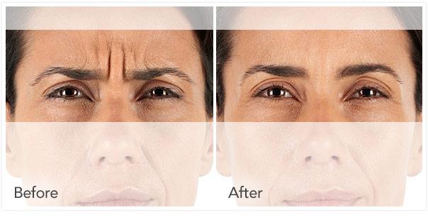 facial dystonia treatment