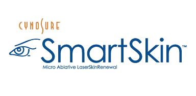SmartSkin Laser