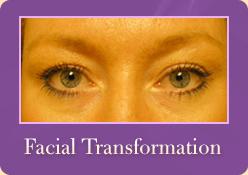 Facial Transformation