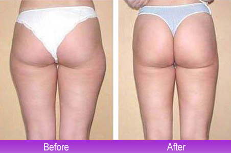 With Laser Liposuction, A Beam Of Laser Light Is Delivered Through A Much  Smaller Tube. The Light Heats And Liquefies The Fat, Causing Far Less  Tissue ... Design Ideas