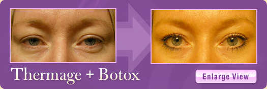 Thermage + Botox Patient